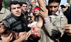 Los manifestantes egipcios llevan a un oficial herido mientras los manifestantes a favor y en contra de Mubarak se enfrentan en El Cairo en febrero de 2011.