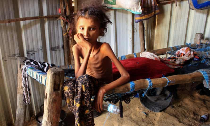 Una niña yemení sentada en su cama en un campamento para desplazados internos en el norte de la gobernación de Hajjah